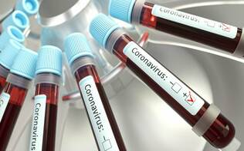 Coronavirus, covid19, test sierologico